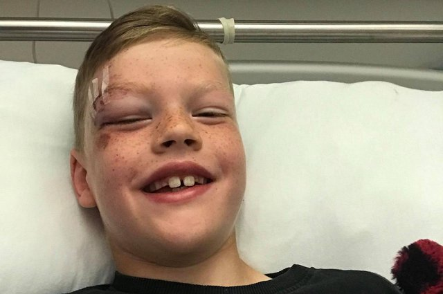 Denny eight-year-old Calvin Duff was knocked down by a van in the town's Dryburgh Avenue on Monday. Contributed.